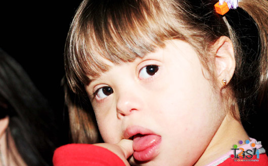 Control de la lengua en los niños con síndrome de Down. ¿Cuáles son las causas, qué debemos tener en cuenta?
