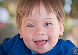 Un futuro fármaco inyectable para el  tratamiento del síndrome de Down