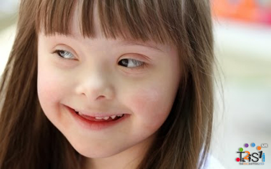 99% de los síndrome de Down son felices con sus vidas
