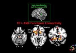 Detectan supresiones de genes en individuos con autismo