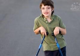 Una cirugía en los músculos da movilidad a niños con parálisis cerebral