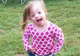 Terapia Física Para Niños Con Síndrome De Down