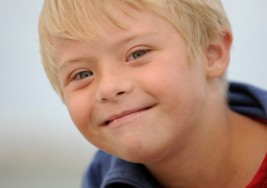 La atención temprana en el síndrome de Down