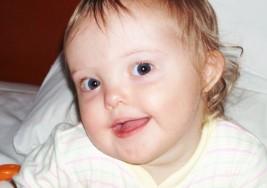 Reflejos oculares y síndrome de Down