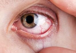 ¿Por qué revientan los vasos sanguíneos de los ojos?
