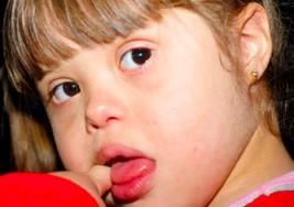 Conociendo más sobre el síndrome de Down