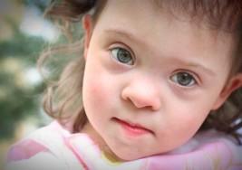 Mitos y realidades sobre el síndrome de Down