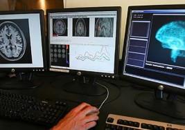 La esclerosis múltiple puede detectarse en sangre años antes de que haya síntomas