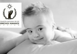 Llama CNDH a eliminar discriminación por síndrome de Down