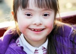 Encuentran relación entre síndrome de Down y leucemia
