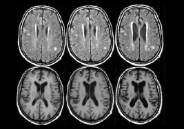 Centroamérica contra la esclerosis múltiple