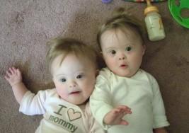 El síndrome de Down en gemelos es bastante raro