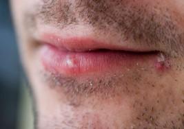 ¿Podría el virus del herpes labial infectar células implicadas en la esclerosis múltiple?