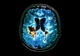 Un programa para mejorar la vida de pacientes con esclerosis múltiple