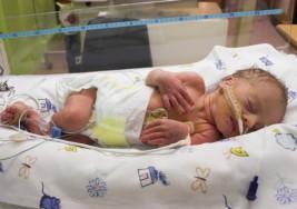 La fragilidad de los bebés prematuros