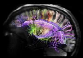 Afinando los circuitos cerebrales se podría obtener significativas mejoras en el tratamiento del autismo