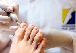Ante la diabetes, alertan a adultos mayores a cuidar sus pies