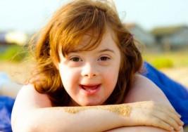 El síndrome de Down, qué es y cómo tratarlo