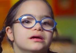 Avances médicos permiten personas con síndrome de Down vivir más y con mejor calidad de vida