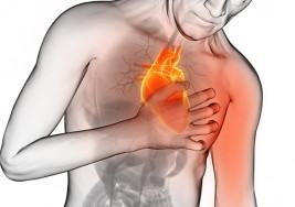 Qué es un infarto, cuáles son los síntomas y qué debo hacer si tengo uno
