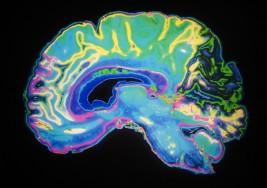 Las ondas cerebrales podrían ayudar a medir la gravedad del autismo, según un estudio