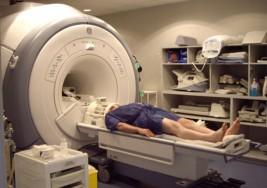 La resonancia magnética, aliada para el diagnóstico precoz de la esclerosis múltiple