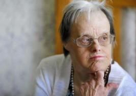 Envejecer con síndrome de Down, el reto del siglo XXI