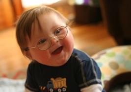 Hazaña de un chico con síndrome de Down