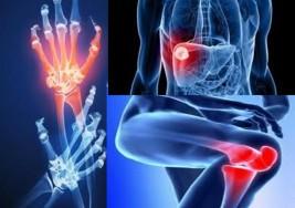 Artritis Reumatoidea: dieta sana y ejercicio