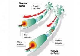 Esclerosis múltiple: llega una pastilla diaria con menos secuelas