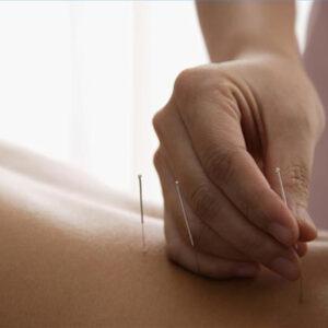 Cómo utilizar la acupuntura para tratar la esclerosis múltiple