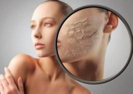 Cómo mantener la piel hidratada en invierno