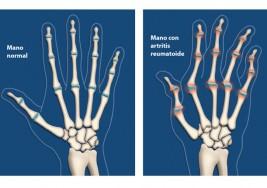 Remedios naturales para los dolores de artritis