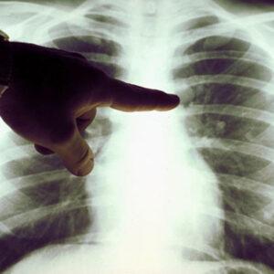 Cómo limpiar los pulmones después de dejar de fumar