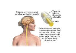Cómo reparar la vaina de mielina con alimentos