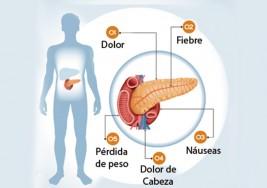 6 Síntomas de un problema en el páncreas