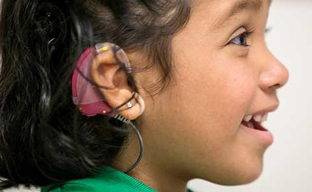 Implante ayuda a romper la barrera del sonido a niños sordos