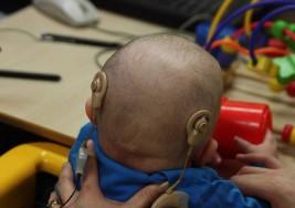 Implante coclear recupera audición en 90% de niños con sordera