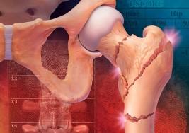 Cuerpo sano: Los porqués de la osteoporosis