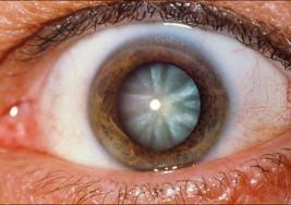 Cataratas pueden provocar ceguera