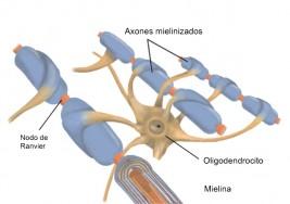Hacia la remielización en esclerosis múltiple