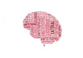 El autotrasplante de células madre en la Esclerosis Múltiple no está exento de riesgo