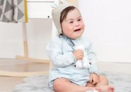 Clara, una bebé con Síndrome de Down que se convirtió en modelo