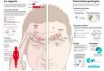 Infografia migraña