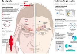 Combatir la migraña mediante cirugía