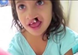 Esta es la reacción de una niña con labio leporino cuando se ve a si misma luego de su cirugía facial