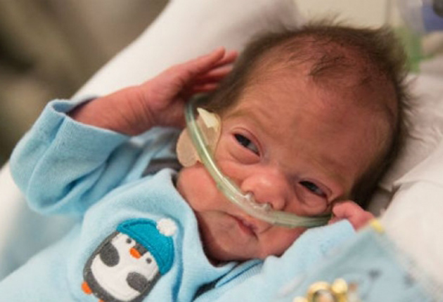 Embarazada con parálisis cerebral da a luz un bebé