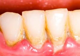 Como eliminar la placa dental en 5 minutos, sin ir al dentista
