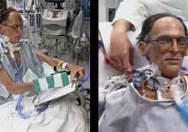 Este es el primer ser humano del mundo capaz de vivir sin corazón ni pulso