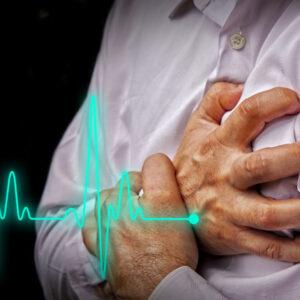 Descripción gráfica de un infarto.